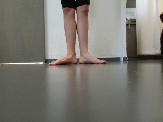バレエ 外脛骨