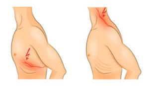 肋間神経痛・頚椎ヘルニア