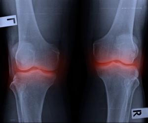 変形性関節症のレントゲン画像