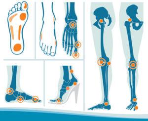 足の整形外科的疾患